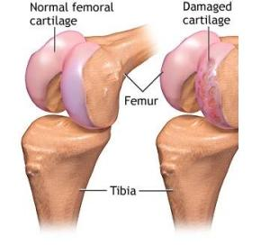 refacerea cartilajului articular al articulației șoldului compresa de gelatină pentru durerile articulare