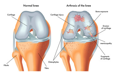 tratament pentru boala artrozei