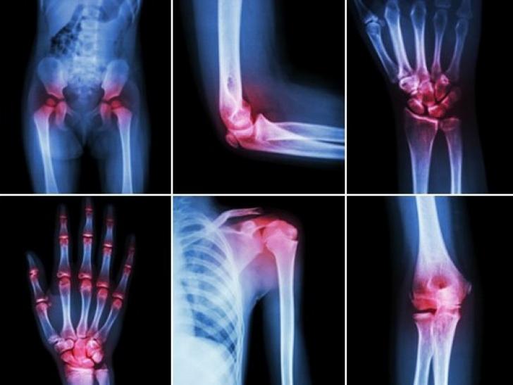 dacă durerea articulațiilor întregului corp artrita cronică a articulațiilor mâinilor