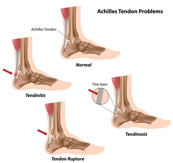 Este posibil să înoți cu artroza articulației genunchiului îndepărtarea durerii cu artroza genunchiului