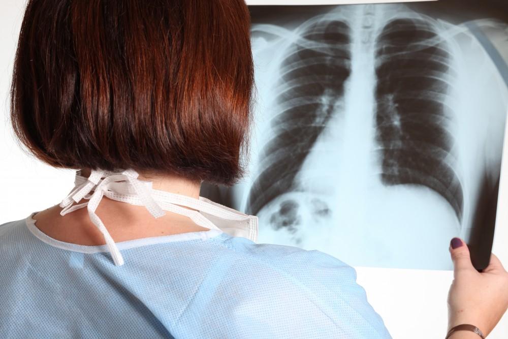 leziuni pulmonare în bolile difuze ale țesutului conjunctiv durere în articulațiile genunchilor