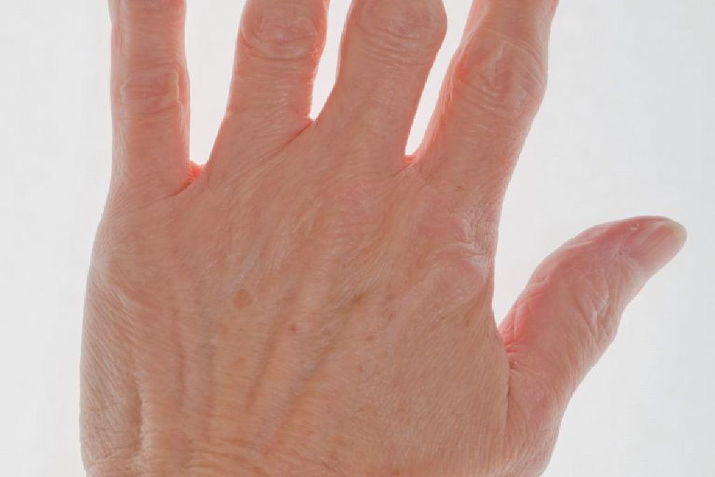 inflamația țesuturilor din jurul articulațiilor