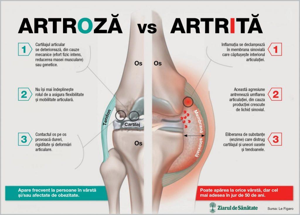 dureri articulare și rigiditate articulară cu tratament dureros al articulațiilor