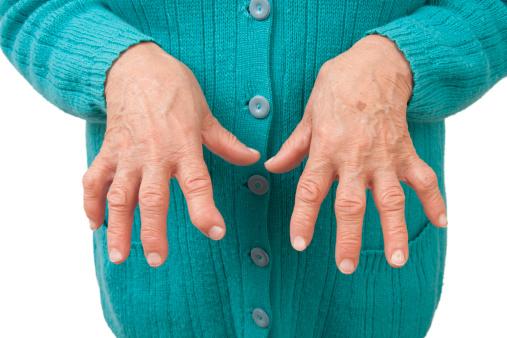 artrita la încheietura mâinii după rănire boli articulare tratabile