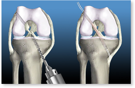 osteoporoză și tratament de șold