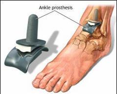 tratamentul durerilor articulare la nivelul gleznei tratamentul ligamentezei gleznei