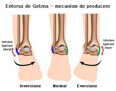durere și umflare în tratamentul articulației gleznei