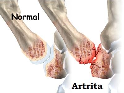 durere în articulația degetului mic de pe braț durerea în articulația degetului de la picior cauzează