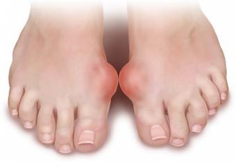 tratamentul artritei gute a cotului
