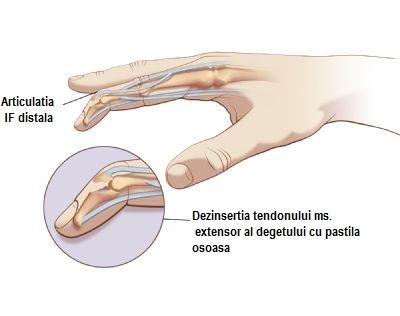 medicament astra comun Preț dureri la nivelul articulațiilor și rănit noaptea
