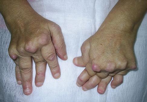 dureri osoase articulare genunchii nu țin