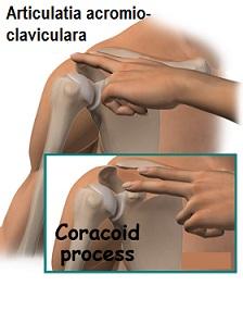 durere în articulația acromială claviculară dureri articulare la nivelul gâtului