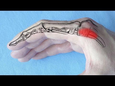 coxartroza unguentului de șold durere a tratamentului articulației umărului drept