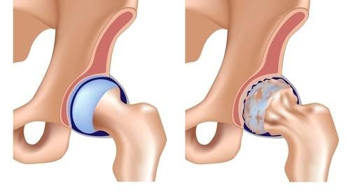 coxartroza unguentului de șold cum să întărească oasele și articulațiile medicament