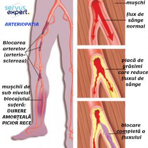 dureri articulare cu boli de sânge dureri articulare cu toxicoză