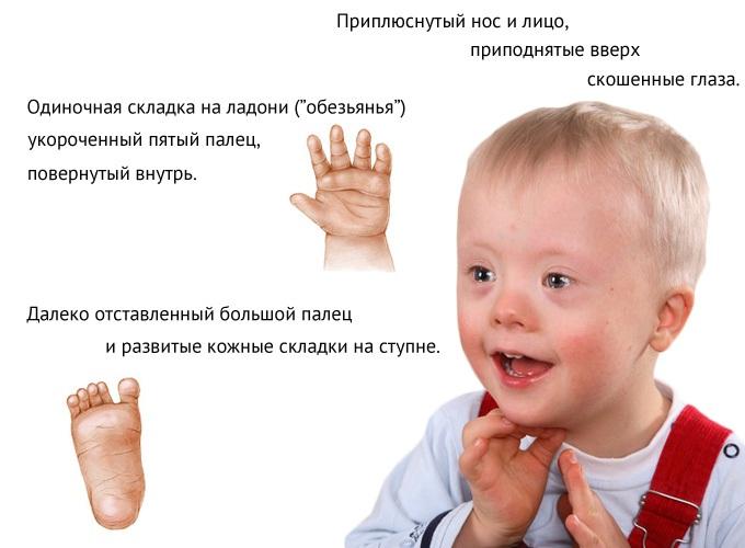 consecințele leziunilor șoldului medicamente pentru artroza manuală