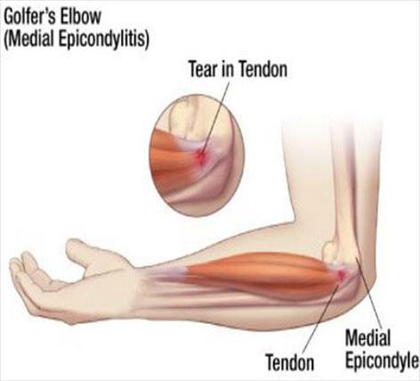 crăpături și dureri la genunchi articulațiile rănesc nevroza