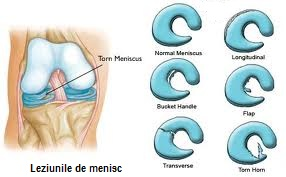 clasificarea leziunilor meniscului la genunchi