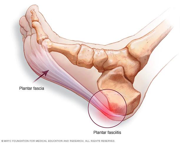 dureri articulare din călcâie