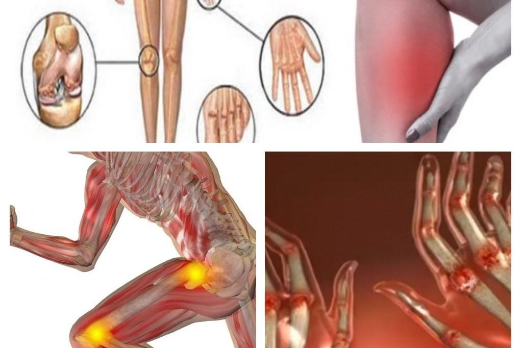 îndepărtarea inflamației articulare în artrită zmeura durerii articulare