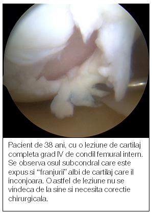 refacerea cartilajului genunchiului