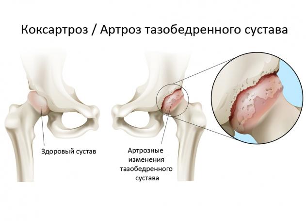 коксартроз лечение препараты durerile articulare sunt