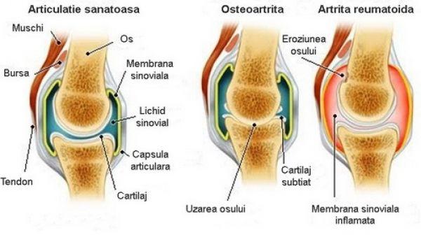 mudra din boala articulară artroza articulațiilor genunchiului și șoldului