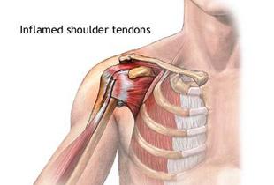durere de braț articulația umărului