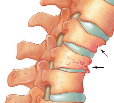 tratamentul sclerozei subcondrale a articulațiilor