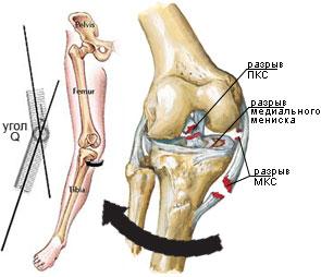 dispozitive denas tratamentul artrozei unde se tratează reumatismul articulațiilor