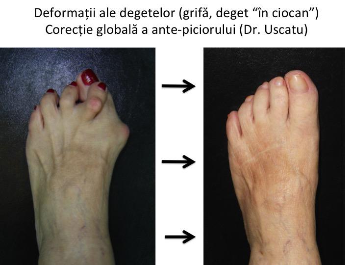 deteriorarea capsulei articulației degetului de la picior durere de sold la apăsare