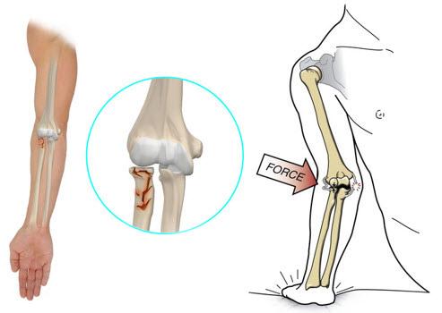 fractură în tratamentul articulației cotului