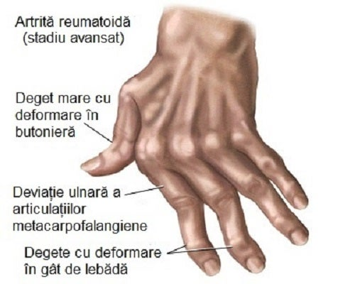 artrită mâini artrite