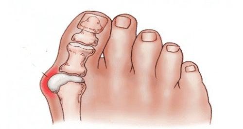 durere picior articulație mare deget de la picior vitaminele articulațiilor mâinii doare