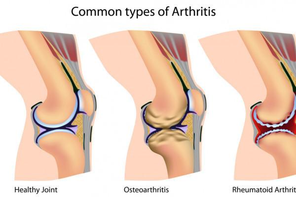 injecții pentru durere în articulații pastile antiinflamatorii pentru inflamația articulară