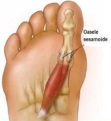 durere picior articulație mare deget de la picior blocarea artrozei genunchiului