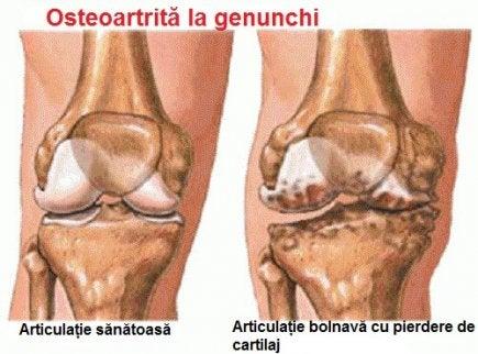dureri de durere nocturnă la genunchi dureri la nivelul genunchiului afară