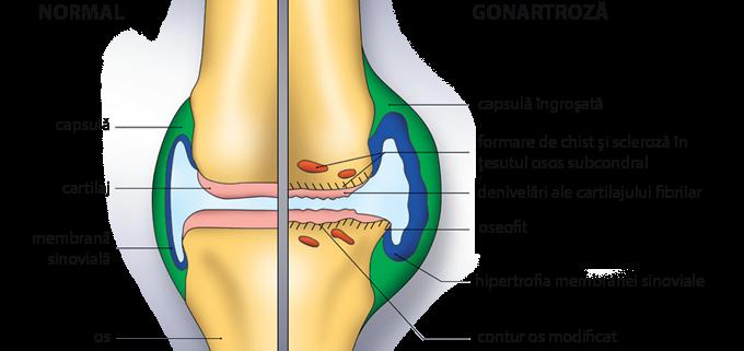 ce vitamine să luați cu artrita articulației genunchiului articulațiile picioarelor doare cum se tratează