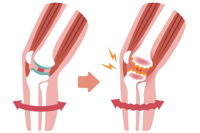 modificarea formei articulației genunchiului