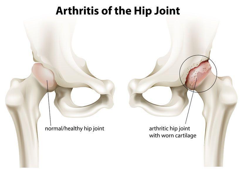 artroza idiopatică a articulației șoldului dureri la umăr și braț