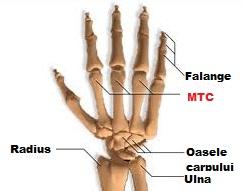 articulația șoldului doare în și cauza durerii în articulațiile piciorului