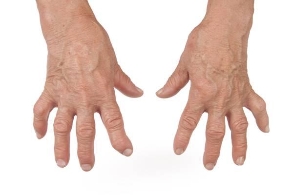 atenuând durerea în articulațiile degetelor atunci când îndoite