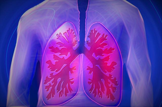 artrite medicamente articulare