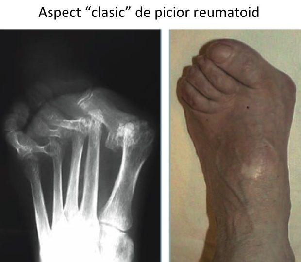 artrita articulației piciorului durere în articulația șoldului și sacru