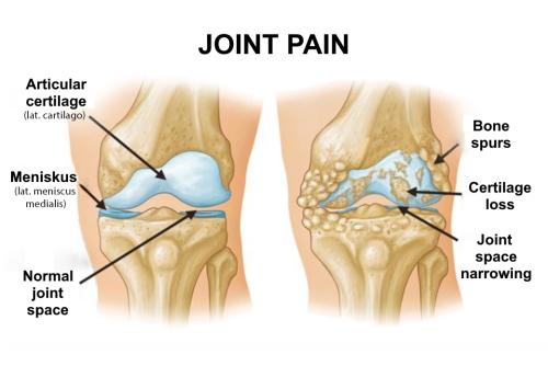 arthron medicine joint tratament pentru boala de șold