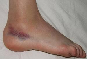 cum să repari leziunile ligamentelor genunchiului reacții alergice la mâini cu artrită
