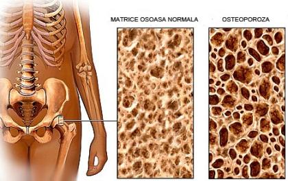 Osteoporoză la șold Tratament de gradul I