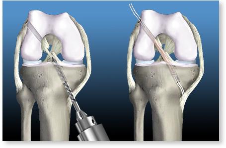 Repararea ligamentelor genunchiului Preț cum se vindecă tratamentul articulațiilor