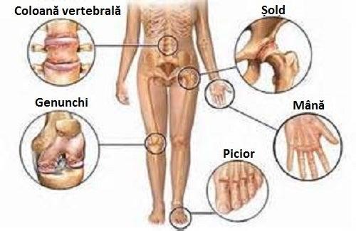 cum să elimini durerile musculare și articulare dacă articulația din picior doare