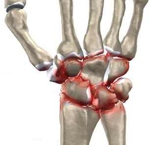 tratamentul de luxare a articulațiilor la încheietura mâinii cremă pentru gât cu osteochondroză